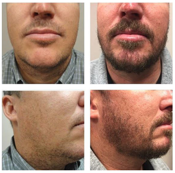 beard transplant on male patient